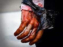 Юноша лишился рук из-за взрыва в Харькове