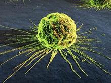 Создан микрочип для определения раковых клеток