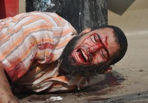 Фотогалерея: Самый кровавый день современной истории Египта. Репортаж из Каира