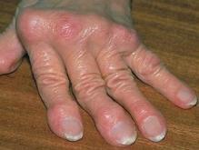 Ученые: Алкоголь защищает от артрита