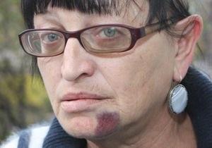 Аваков: Подонки, избившие активистку Батьківщини, не останутся безнаказанными