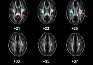 Ученые обнаружили гены интеллекта