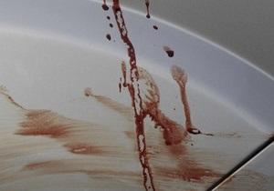 В России девушки убили пенсионерку и подожгли ее квартиру