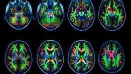 Интернет-зависимость меняет головной мозг