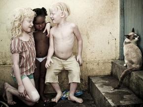 В семье темнокожих бразильцев родилось трое альбиносов