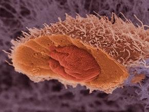 Для пересадок будут использовать органы больных раком людей