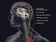 Ученые нашли способ остановки эпилептических припадков