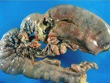 В 2007 году онкозаболевания унесут жизни более 7 млн человек