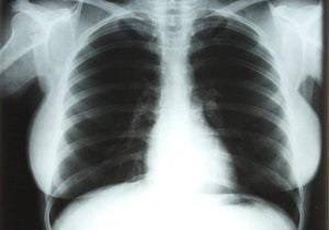 В Лас-Вегасе на аукцион выставят рентгеновские снимки Мэрилин Монро