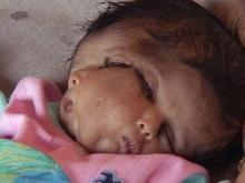 В Индии новорожденную с двумя лицами объявили божеством