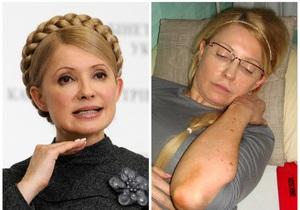 Исхудавшая и больная Тимошенко и саммит ЕС - иностранная пресса