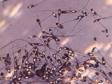 Научный прорыв: Генетики получили сперму из женских эмбрионов