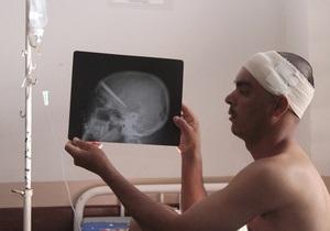 Бразильские медики удалили из головы мужчины нож, с которым тот прожил три года