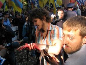 Комитет Рады по свободе слова обеспокоен нападением на одесских журналистов