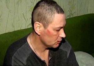 СМИ: В поисках Мазурка милиция избила инвалида-родственника его жены