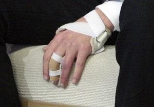 В Запорожье официантка сломала руку клиентке кафе