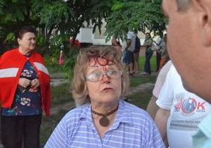Жители Троещины заявляют об избиении протестующих против строительства торгового центра
