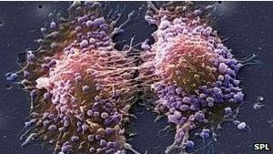 Ученые: на изучение рака простаты не хватает денег