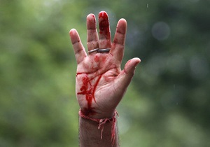 В Житомирской области мужчина стрелял из обреза в двухлетнюю дочь и жену