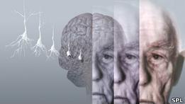 Британские ученые: потеря памяти начинается с 45 лет