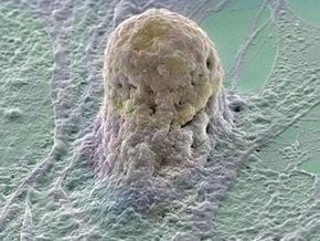 Лечение стволовыми клетками привело к появлению опухолей у подростка