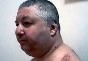 Депутату, которому отрезали нос и уши, дали 10 лет тюрьмы за покушение на Кернеса и Добкина