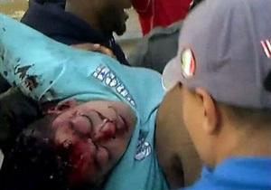 Кровавая бойня в Бенгази: Военные убили более 200 протестующих против режима Каддафи