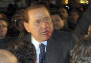 Неизвестный ударил Берлускони в лицо