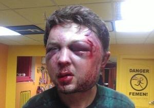 Femen заявляет о жестоком избиении одного из идеологов движения