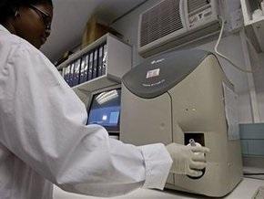 Ученые обнаружили  новый штамм вируса ВИЧ