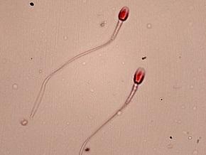 Ученые доказали влияние интеллекта на качество спермы