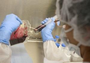 Ученые: Поджелудочная железа пациентов с диабетом І типа самостоятельно вырабатывает инсулин