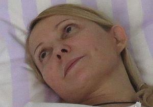 Замглавы Минздрава: У Тимошенко исчезла сухость во рту