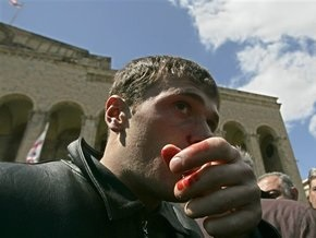 Грузинские оппозиционеры обвиняют МВД в обстреле демонстрантов