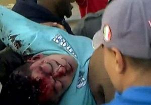 Войска Каддафи обстреляли жилые кварталы, 30 человек погибли