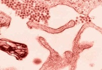 В США создан тест для ранней диагностики рака яичников