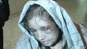 15-летнюю девочку в Афганистане пытала семья ее мужа