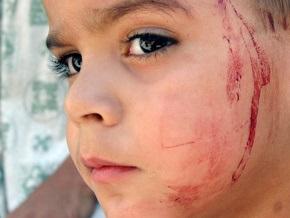 Киевская прокуратура требует улучшения условий содержания детей в спецзаведениях МВД