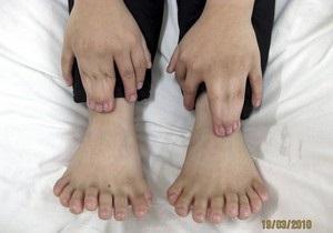 В Китае мальчику удалили 11 лишних пальцев