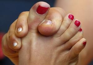 Определены сильнейшие пальцы ног в мире