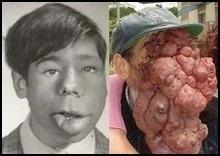 Лікарі допоможуть людині з гігантською пухлиною на обличчі