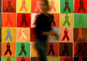 Российские ученые обнаружили новый подтип ВИЧ - спид