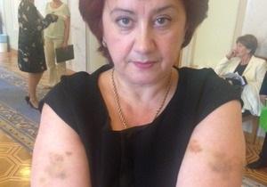 Батьківщина: Охрана Азарова избила народного депутата Ольгу Сикору