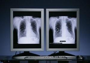Новости медицины - рак легких - диагностика: Рак легких научились диагностировать по дыханию