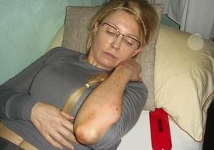Комитет по предотвращению пыток представил отчет о сопротивлении Тимошенко при перевозке в больницу - Ъ