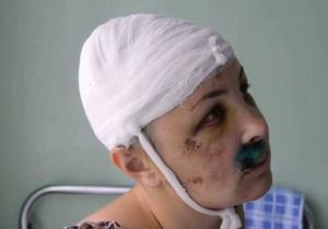 Врадиевка - Дрижак - Крашкова - изнасилование - Адвокат Дрижака считает, что Крашкову избил ее любовник
