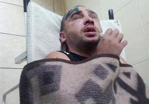 Новини Донецька - Дорожній контроль - У Донецьку невідомі жорстоко побили активіста Дорожнього контролю