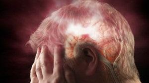 Вчені: Ліки від тромбів поліпшують стан після інсульту