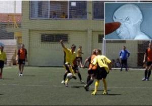 Воротар відіграв футбольний матч із кулею в голові