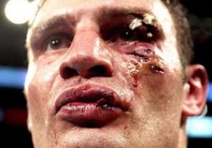 Бывший тренер Тайсона хочет избить братьев Кличко